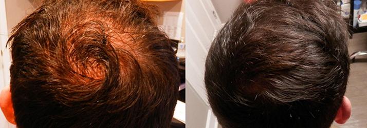 Chronic Pain St. Petersburg FL Hair Restoration Services